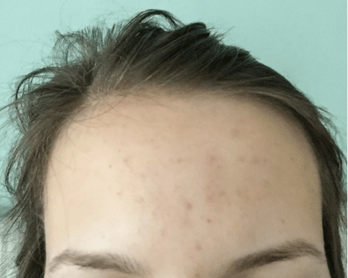 How I Cleared the Tiny Bumps on My Forehead Before Picture 2