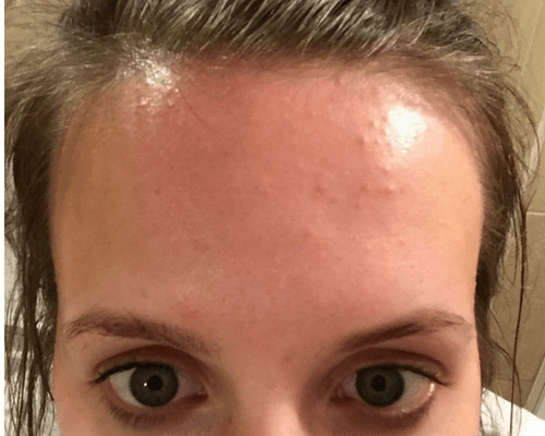 How I Cleared the Tiny Bumps on My Forehead: Before Picture