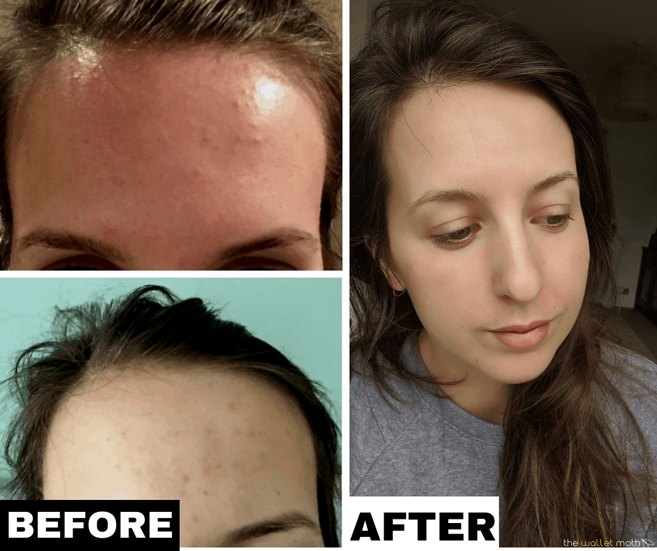 How I Cleared The Tiny Bumps On Forehead | How I Cleared My Acne